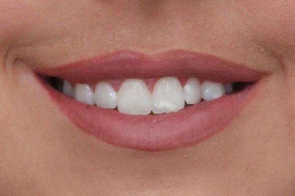 gummy-smile-after