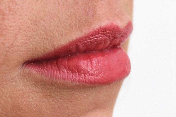 lip-enhancement-after